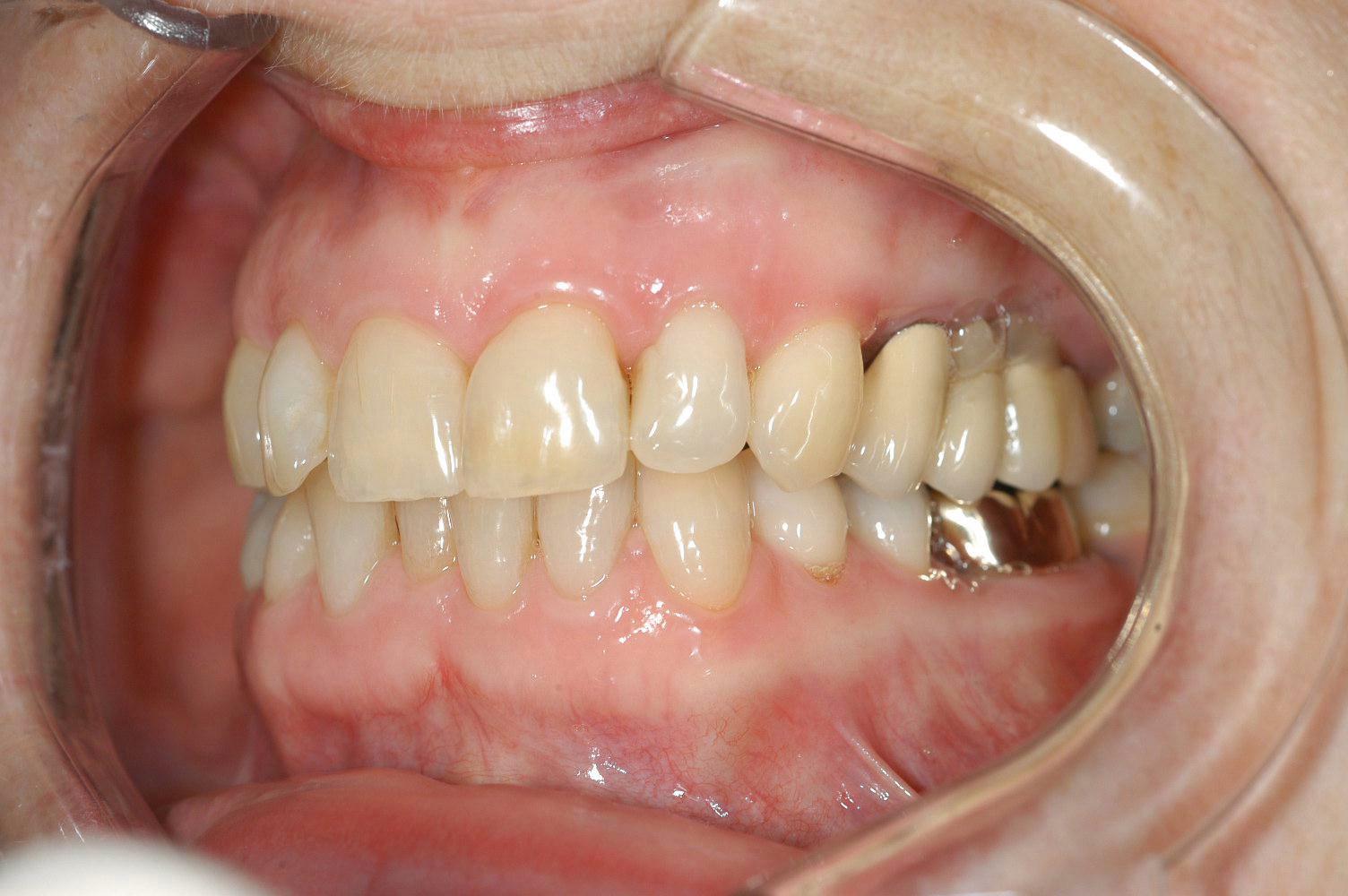 brug-3delig-op-2-implantaten-1