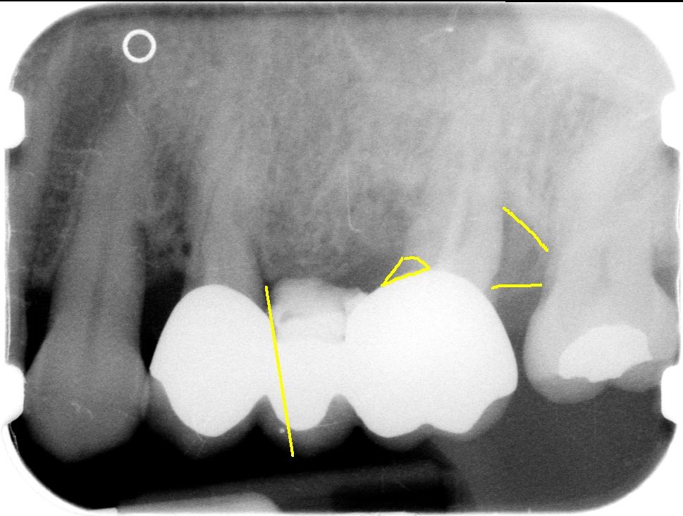 brug-3delig-op-2-implantaten-3